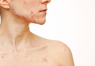 Acne on the Body