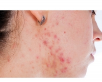 When Acne Leads to Skin Discoloration