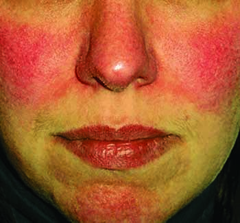 ROSACEA: Sufferers of Little Understood Disease May Soon Have New