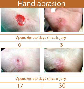 Observance Of Wound Healing In The Aesthetic Setting