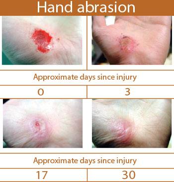 hand-abrasion