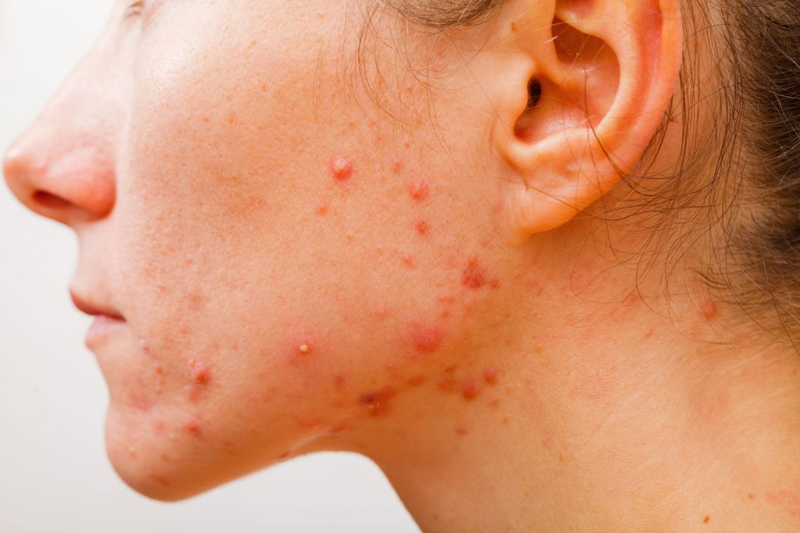 True Causes of Acne