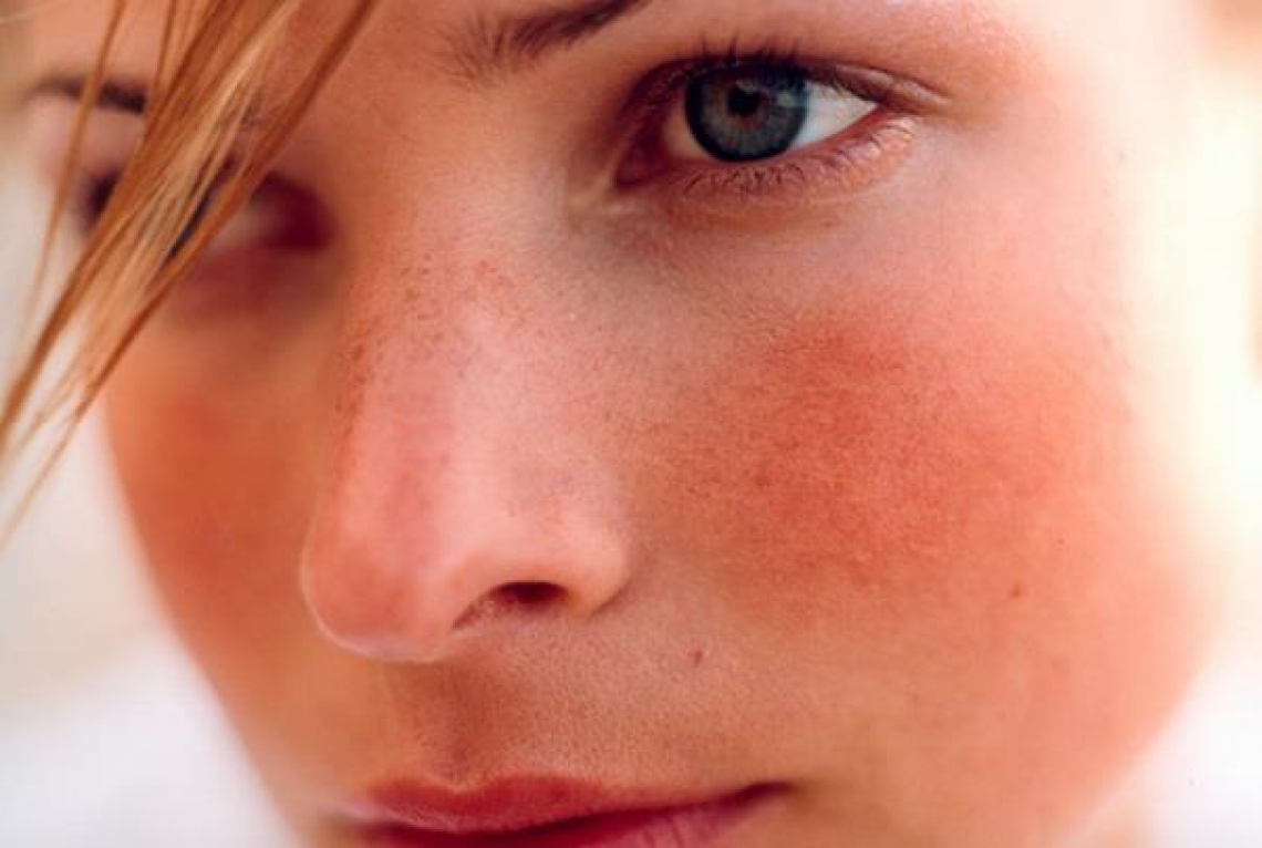 Etiology and Clinical Management of Rosacea