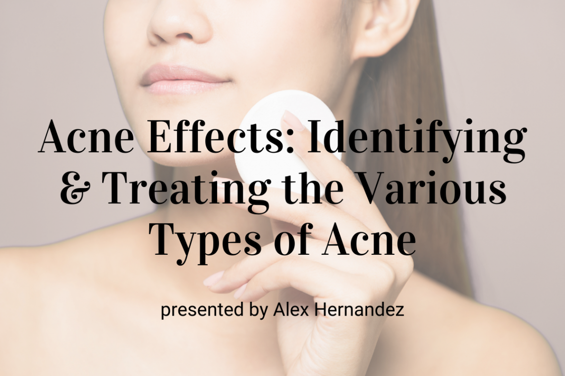 Acne Effects: Identifying & Treating the Various Types of Acne