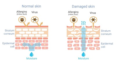 Normal Vs. Damaged Skin