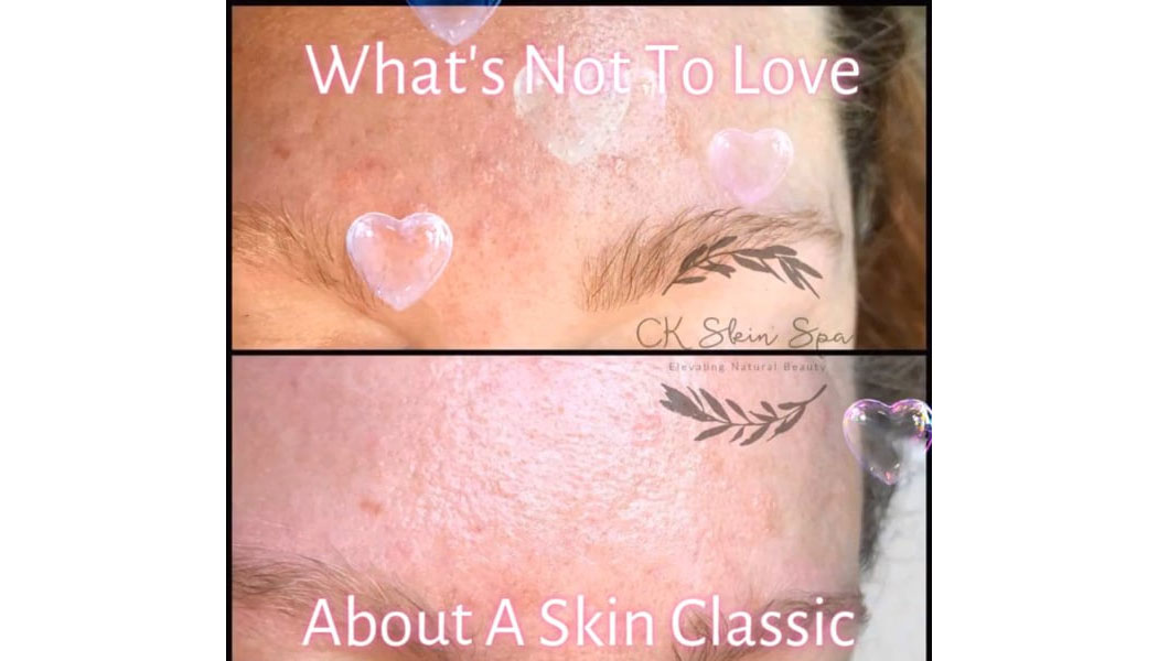 Skin Classics by RN Faces