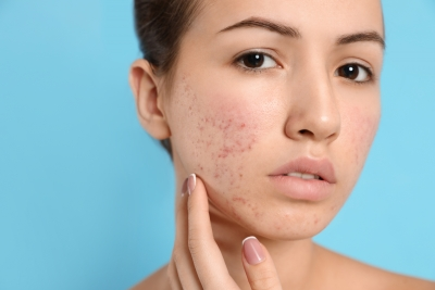 Teen Troubles: Real World Advice for Treating Teenage Acne