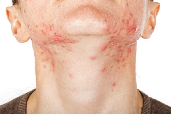What Really Causes Acne? Alternative Views and Holistic Solutions