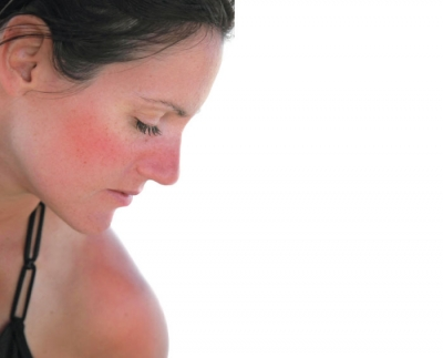 Soothing Sunburns with an Integrative Approach