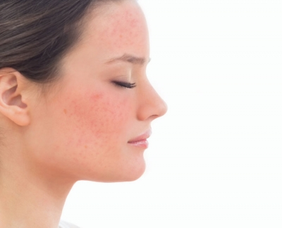 10 Things About Rosacea
