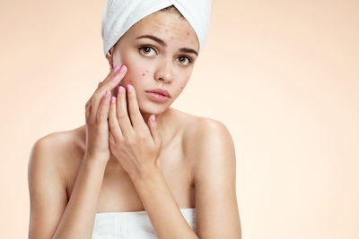 Gone for Good: Treatment  and Prevention of Acne Scarring