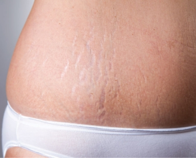 The Efficacy of  Stretch Mark Solutions