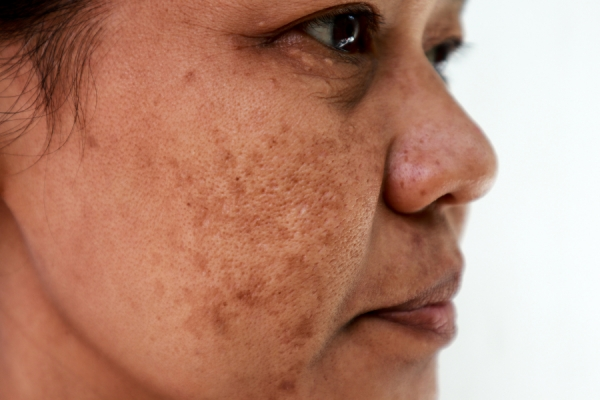 Pigmentation Protocol: From Treatment to Prevention & Everything In-Between