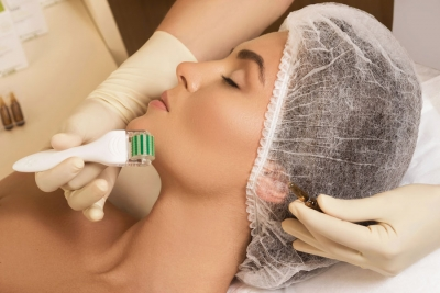 10 Things About Microneedling