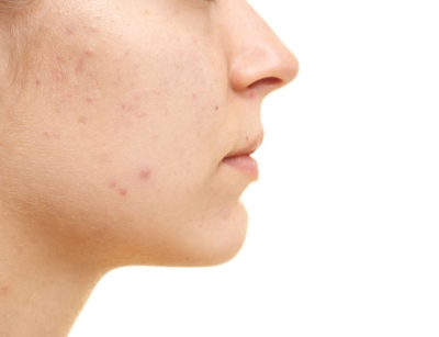 Acne Scarring: 4 Therapies for Improvement