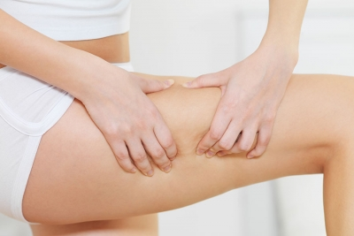 A Crash Course on Cellulite Treatments