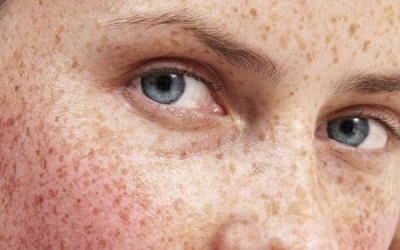New Advances in Treating Hyperpigmentation