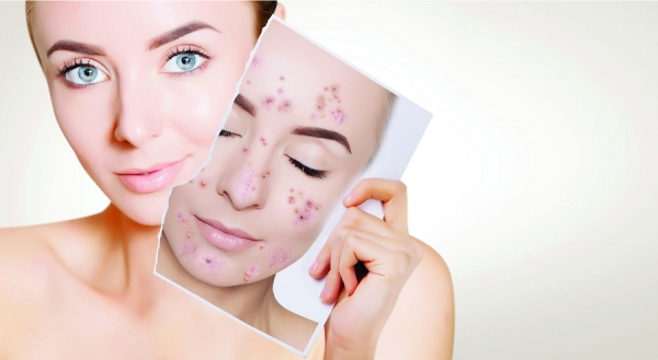 Adding Acne Services: 10 Tips for Success