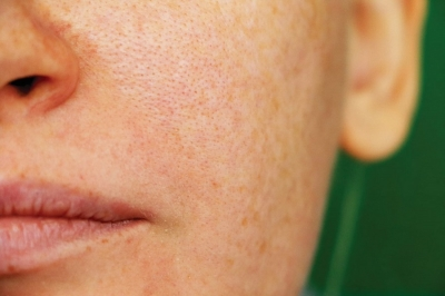 Fact or Fiction: Open pores are actually better.
