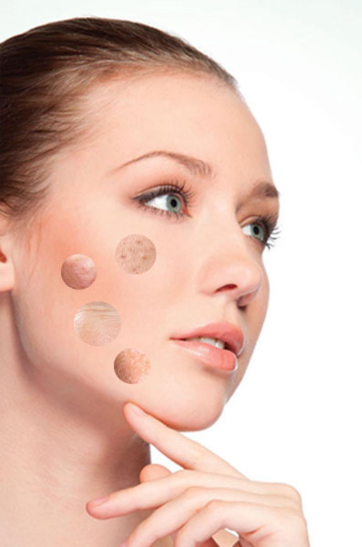 skin analisis