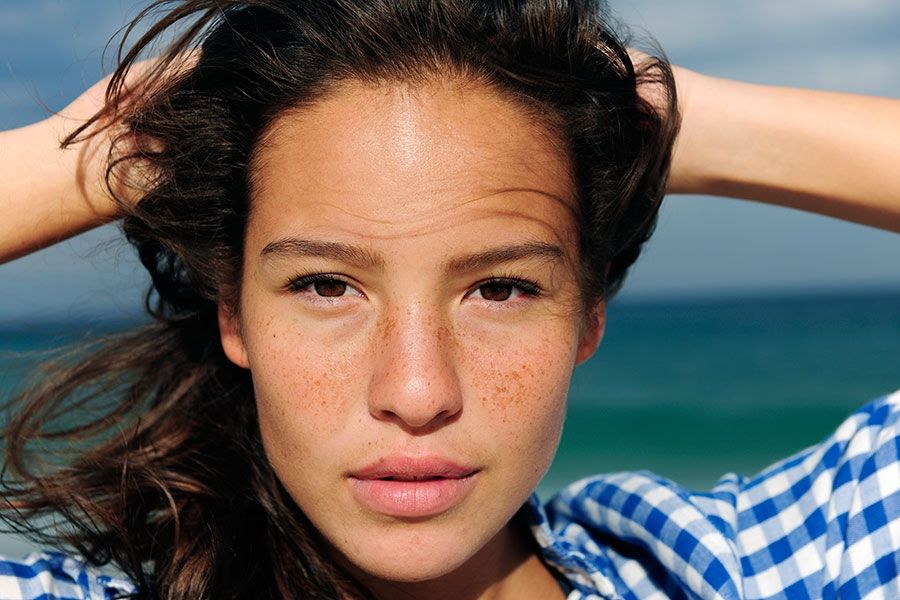 Fitzpatrick Skin Types 4-6: Causes, Treatments, and Prevention of Common Hyperpigmentation Issues