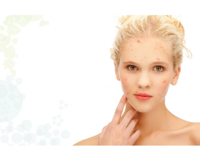 Natural versus synthetic Acne Solutions