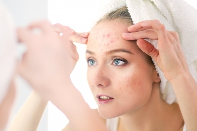 All Time High: A Look at the Increasing Occurrence of Adult Acne