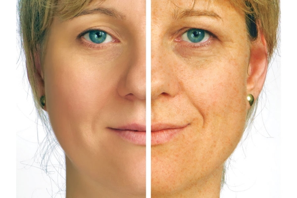 Fact or Fiction: Most sun damage accumulates before the age of 18.