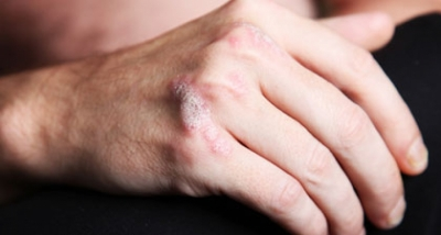 Psoriasis Patients Face Higher Than Average Death Risk After a Heart Attack
