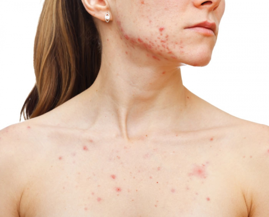 10 Things About Body Acne