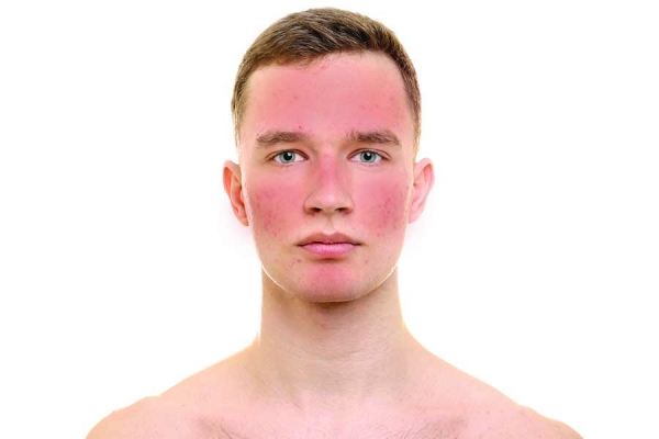 ROSACEA: Sufferers of Little Understood Disease May Soon Have New Treatment Options