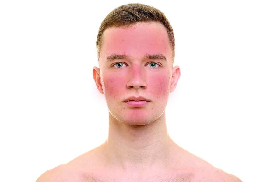rosacea treatment for men