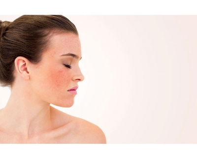 The Red Face of Rosacea Classifying and Treating Rosacea