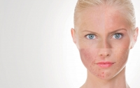 Underlying Causes of Sensitive Skin: Analyzing Internal and External Factors