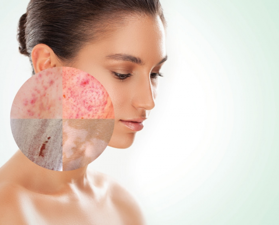 Distinguishing Between Skin Diseases Aestheticians Need To Recognize