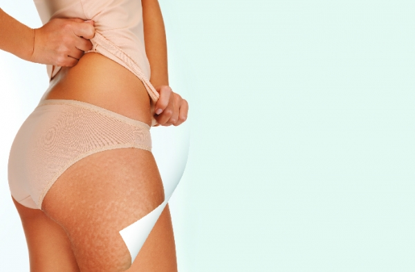 Lypossage: A Proven Modality for Cellulite Reduction and Inch Loss