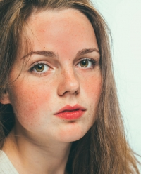 Rosacea Exposed: What They Don't Teach You