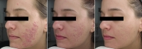 Reduce Acne Suffering:  The Use of Good Clinical Photographs to Improve Treatment Compliance