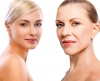 Treating the Signs of Aging at 30 Versus 70