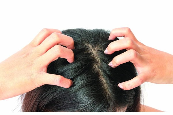 Scratching the Surface on Itchy Scalp Solutions