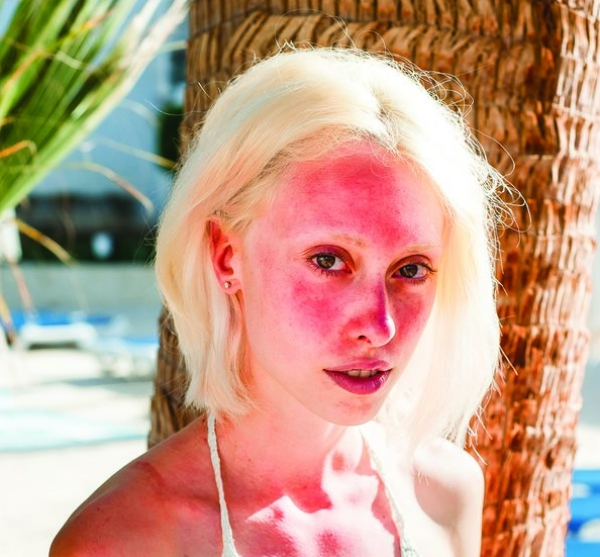 Fact or Fiction: Sun exposure makes rosacea worse.
