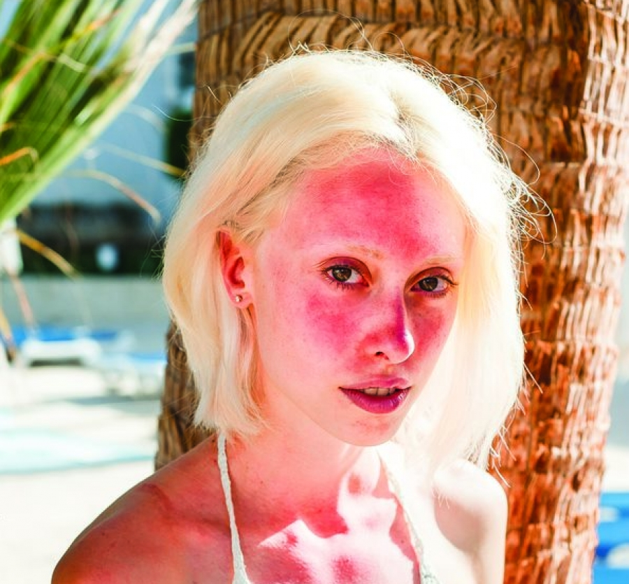 Sun exposure makes rosacea worse.