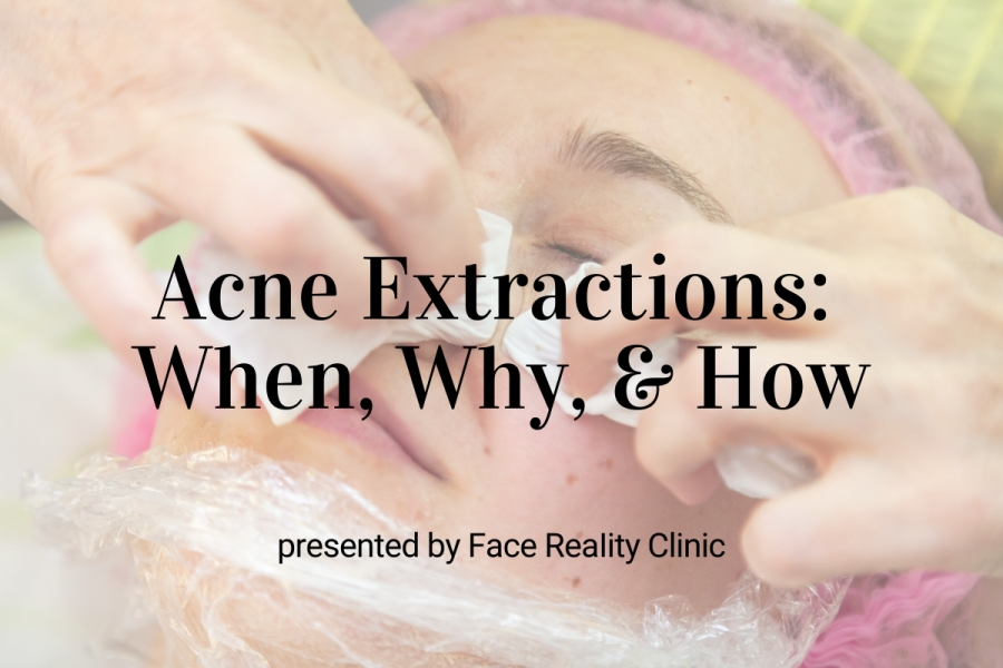 Upcoming Webinar: Acne Extractions – When,Why, & How