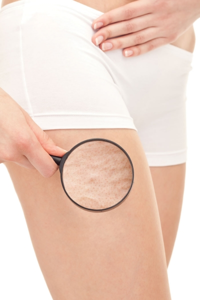 A New Concept in Cellulite Etiology and Treatment