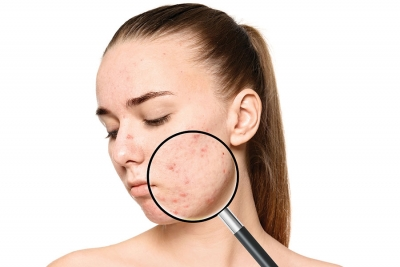 Trouble in Therapy: Rising Issues in Dermatological Acne Treatment