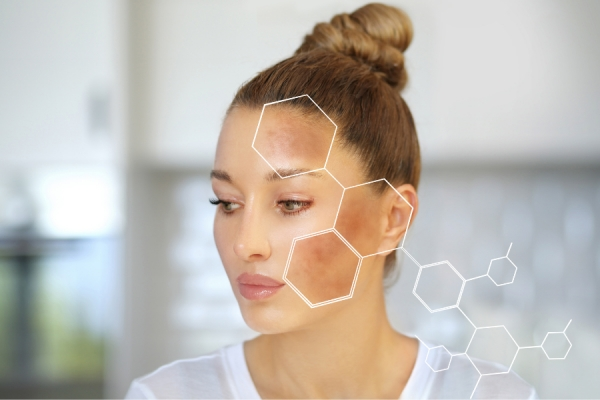 Pigmentation Perspective: Treating Hyperpigmentation Through Diet, Skin Care Regimens, and Blue Light Avoidance