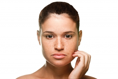 Better Together: Working with Dermatologists to Heal Hyperpigmentation