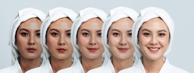 A New Approach for Melasma