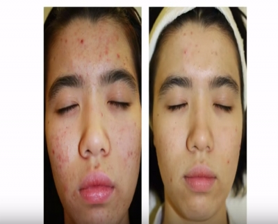 Video: DMK's non-invasive anti-acne treatment you have to try!