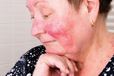 On Red Alert: Recognizing the Common Symptoms and Triggers of Rosacea